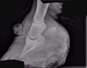 Am Kronsaum sin deutliche Wucherungen zu erkennen, an der Sohle wird vernarbtes Gewebe sichtbar.